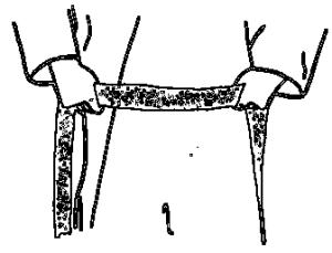 Belt 1 of 6